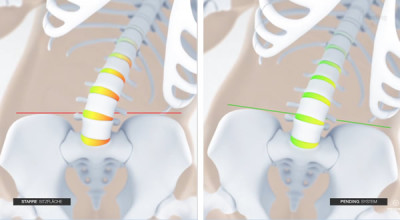 Wirbelsäulenentlastung bei mehrdimensionalen Sitzsystem